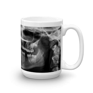 X-Ray Mug-right (15 oz)